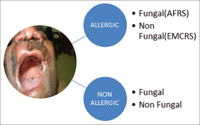 Figure 4: A case of chronic rhinosinusitis which may be allergic or nonallergic, fungal, or nonfungal